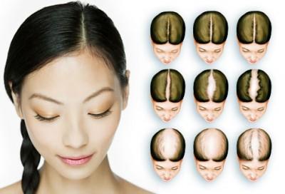 hair_loss_chart