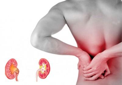 Kidney-Stones (1)