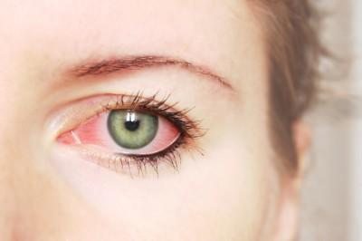 Pink-Eye-(Conjuctivitis)