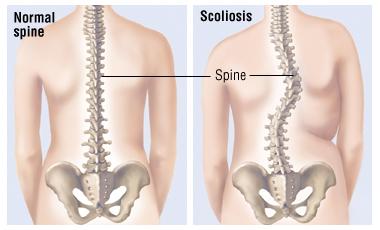 Scoliosis 01