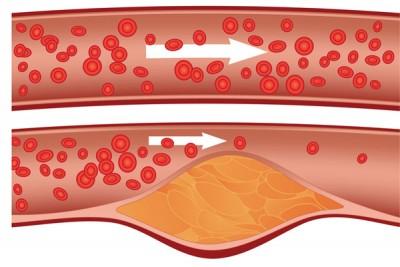 cholesterol-01