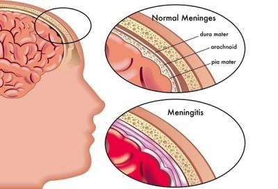 meningitis01