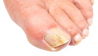 toe-fungus