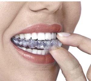 Teeth Guard