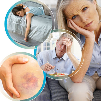 cirrhosis-signs-and-symptoms