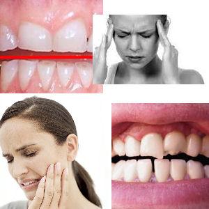 teeth-grinding-symptoms