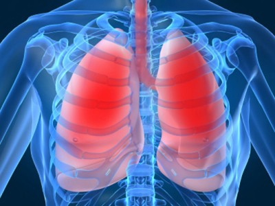 tuberculosis -lung