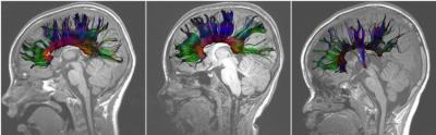 Autism-ct-scan