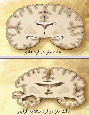 alzheimer-brain-comparison