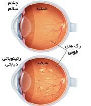مقایسه ته چشم سالم و چشم فرد مبتلا به دیابت و آسیب شبکیه
