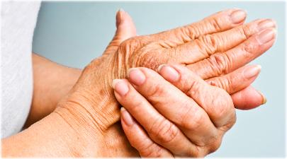 علائم اصلی آرتروز عبارتند از درد و خشکی مفاصل که معمولا با افزایش سن بدتر میشود