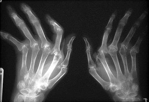 اشعه ایکس با میزان تابش کم برای نمایش استخوانها میتواند کمبود غضروف، آسیبدیدگی استخوان و برآمدگیهای استخوانی را آشکار کند
