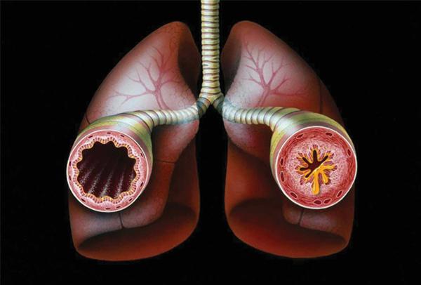 آسم نوعی ناراحتی بالینی است که در آن راههای هوایی در ریه باریک و متورم میشوند و مخاط اضافی تولید میکنند