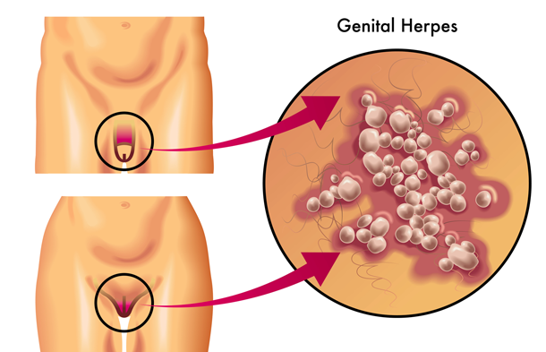 زنان همچنین با زخم بر روی نواحی زیر روبرو میشوند: ناحیه واژن اندام تناسلی خارجی دهانه رحم مردان همچنین با زخم بر روی نواحی زیر روبرو میشوند: آلت تناسلی کیسه بیضه رانها مجرای خروجی مثانه، کانال داخل آلت تناسلی که به مثانه منتهی میشود