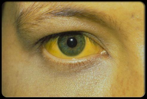 زردی پوست و سفیدی چشم (یرقان)