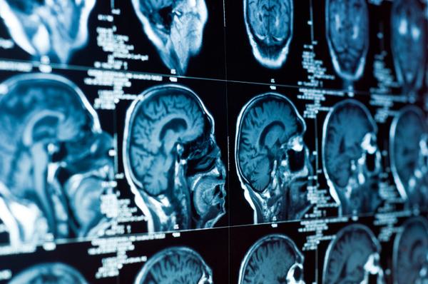 با استفاده از دستگاه های پرتونگاری پیشرفته و میکروسکوپ های قوی، پژوهشگران، قادر به مشاهده ی سلول های مغز و ارتباط آنها در محل پایانه های عصبی است.