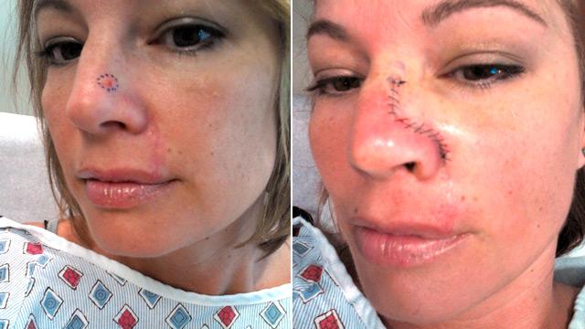 skin_cancer_before_after