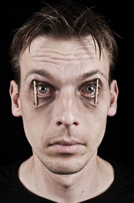 خستگی یا خوابآلودگی در طول روز
