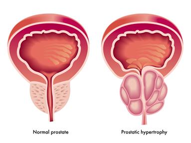 اختلال در بافت، شکل و اندازه غده