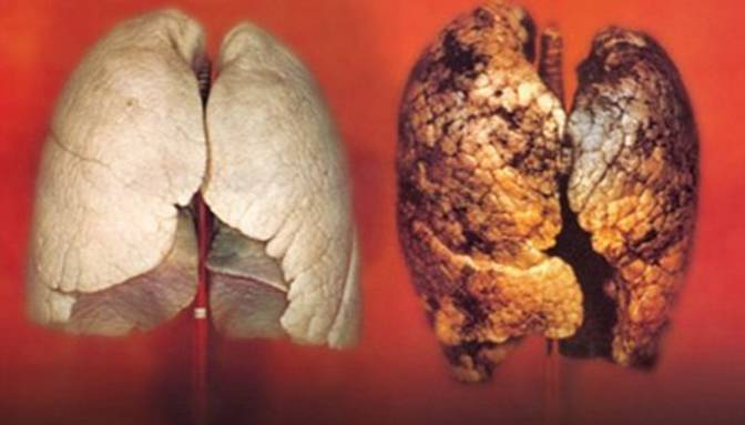 پزشکان معتقدند سیگار کشیدن با آسیب رساندن به سلولهای تشکیلدهنده ریهها باعث سرطان ریه میشود