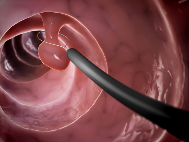 اگر سرطان کوچک و موضعی در یک پولیپ باشد و در مراحل اولیه قرار داشته باشد، دکتر شاید بتواند آن را به طور کامل از طریق کولونوسکوپی بردارد