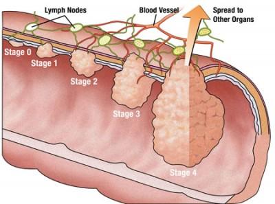دکتر برای تعیین میزان یا مرحله سرطان چندین آزمایش را سفارش خواهد کرد