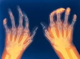 دکتر ممکن است برای کمک به پیگیری پیشرفت تدریجی آرتروز روماتوئید در مفاصل، اشعه ایکس توصیه کند