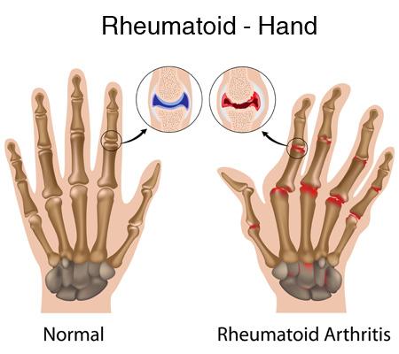 آرتروز روماتوئید نوعی بیماری التهابی مزمن است که معمولا مفاصل کوچک دست و پا را مبتلا میکند