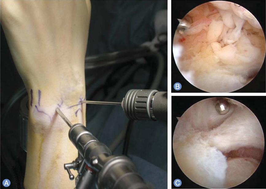 شاید جراحی به بازگرداندن تواناییتان برای استفاده از مفاصل کمک کند