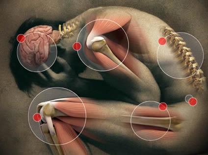 دردی که همراه با فیبرومیالژیا بروز میکند اغلب به شکل دردی مبهم و ثابت توصیف میشود که حداقل سه ماه طول میکشد. چنین دردی برای آنکه گسترده قلمداد شود، باید در هر دو طرف بدن و در بالا و پایین کمر رخ دهد