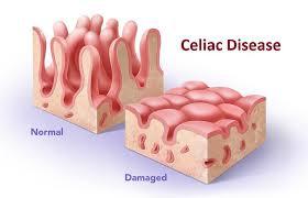 با گذشت زمان، این واکنش موجب التهابی میشود که به پوشش روده کوچک آسیب میزند و از جذب برخی از مواد مغذی جلوگیری میکند