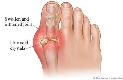 قرس زمانی رخ میدهد که کریستالهای اورات در مفاصل انباشته میشوند و التهاب و درد شدید ناشی از حمله نقرس را آشکار میکنند. کریستالهای اورات زمانی تشکیل میشوند که دارای سطوح بالایی از اسید اوریک در خون هستید