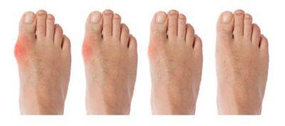 نقرس با حملات شدید و ناگهانی درد، قرمزی و حساسیت به لمس در مفاصل، اغلب مفصل پایین انگشت شست پا مشخص میشود