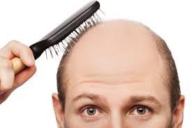 شایعترین علت ریزش مو نوعی بیماری ارثی به نام طاسی الگوی مردانه یا طاسی الگوی زنانه است