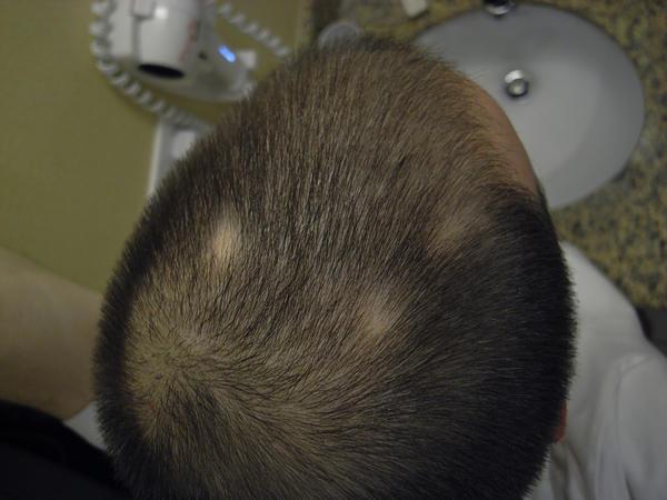 ریزش مو میتواند به خاطر مصرف داروهای سرطان، آرتروز، افسردگی، مشکلات قلبی، فشار خون بالا و کنترل بارداری ایجاد شود