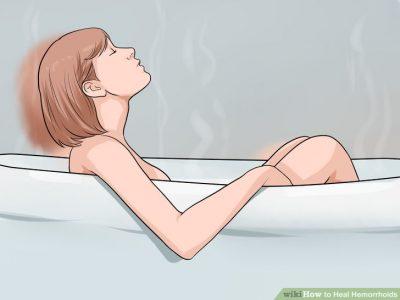 به طور منظم حمام گرم کنید یا داخل وان حمام بنشینید. ناحیه مقعد را در آب گرم ، 10 تا 15 دقیقه دو تا سه بار در روز خیس کنید. نشستن در وان خیلی بهتر از توالت خواهد بود. این لوازم را در اکثر داروخانهها پیدا میکنید