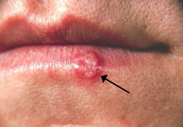 وعی عفونت شایع ویروسی به شمار میرود و تاولهای بسیار ریز پُر از مایع در داخل و اطراف لب بروز میکنند