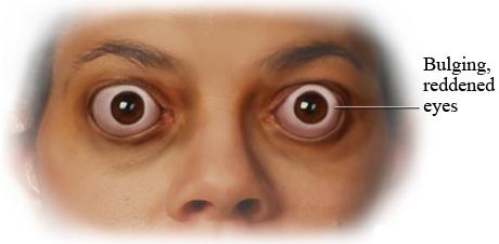 بیرونزدگی چشم