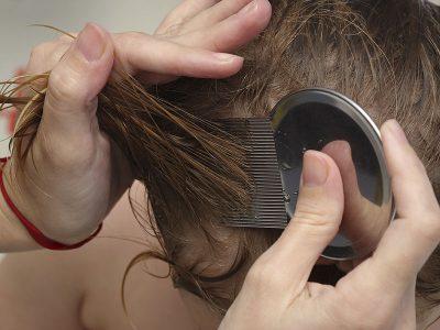 شانه کردن موهای خیس با شانه دندانهریز مخصوص نیت ممکن است شپش و برخی نیتها را از بین ببرد