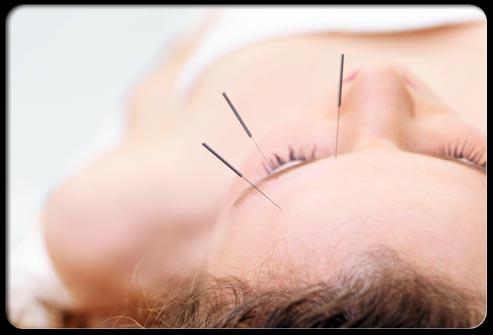 طب سوزنی: در این شیوه درمان، پزشک چندین سوزن یکبار مصرف نازک را در نواحی مختلف پوست و نقاطی معین فرو میکند. آزمایشات بالینی نشان دادهاند که طب سوزنی میتواند برای سردرد سودمند باشد.