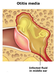 تورم، التهاب و خلط در شیپور استاش ناشی از عفونت دستگاه تنفسی فوقانی یا آلرژی میتواند آنها را مسدود کند و باعث تجمع مایعات در گوش میانی شود. عفونت باکتریایی یا ویروسی ناشی از انباشت مایع معمولا موجب بروز علائم عفونت گوش میشود.