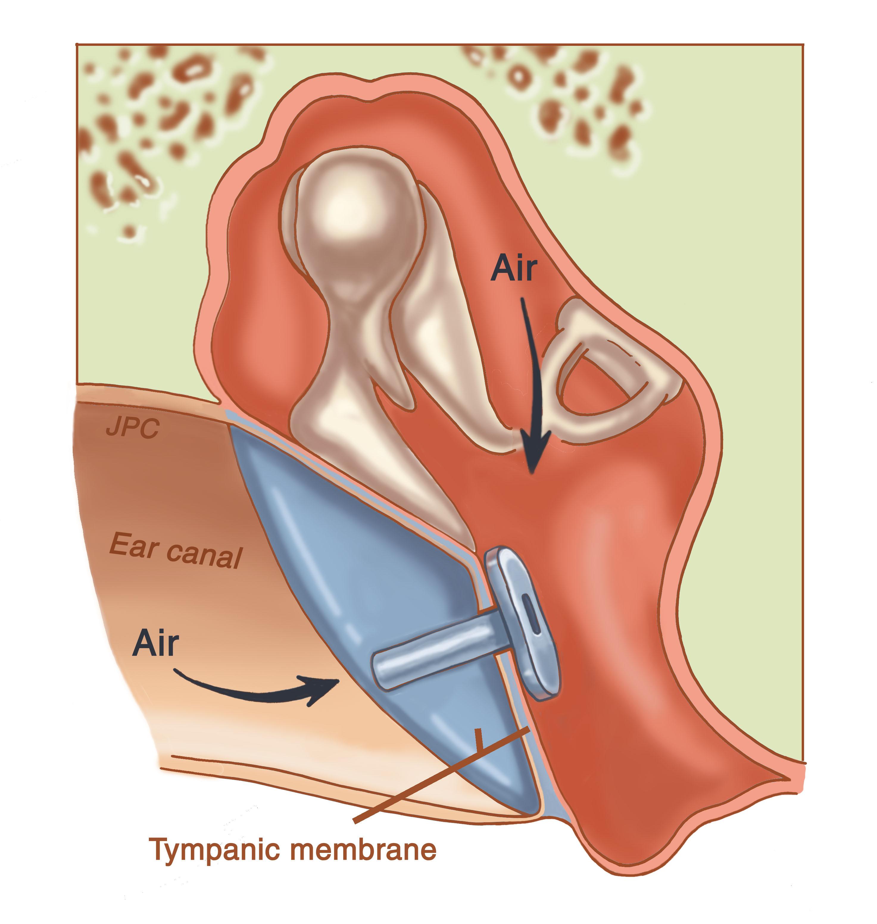 جراح یک سوراخ ریز در پرده گوش باز میکند تا بتواند مایعات را از گوش میانی به بیرون مکش کند. یک لوله ریز (لوله تهویه در گوش) در دهانه گذاشته میشود تا گوش میانی بهراحتی تهویه شود و از تجمع مایعات بیشتر جلوگیری شود.