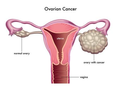سرطان تخمدان نوعی سرطان است که در تخمدان ها شروع میشود. زنان دو تخمدان دارند که هر کدام در یک طرف رحم قرار گرفتهاند