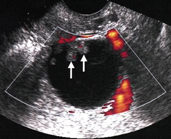 آزمایشهای تصویربرداری، مانند سونوگرافی و یا سیتی اسکن از روی شکم و لگن