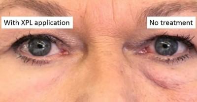 پژوهشگران دانشگاه هاروارد و ام آی تی حاصل چندین ساعت جراحی ظریف و پر دردسر ترمیم چروک های پوست را، که پوستی صاف و شاداب است، در لوله های شیشه ای عرضه کردند. این فرآورده یک پلیمر سلیکونی است و قادر است در کمتر از ۲۰ دقیقه ظاهر مصرف کننده را بیست سال جوانتر کند.