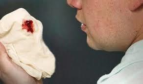 سرفهای که اغلب خون بالا میآورد (هموپتیزی) که گاهی مقدارش بیش از حد زیاد میشود