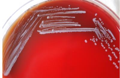 به ندرت، باکتری که باعث تب مالت میشود از طریق هوا و یا تماس مستقیم با حیوانات آلوده پخش میشود