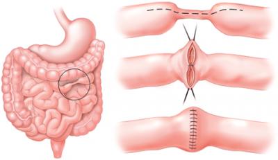 در طول عمل، جراح بخش آسیبدیده از دستگاه گوارش را جدا میکند و سپس بخشهای سالم را دوباره به هم پیوند میدهد