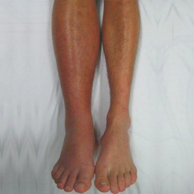 ترومبوز ورید عمقی باعث درد یا تورم پاها میشود، اما ممکن است بدون هیچ نشانهای بروز کند