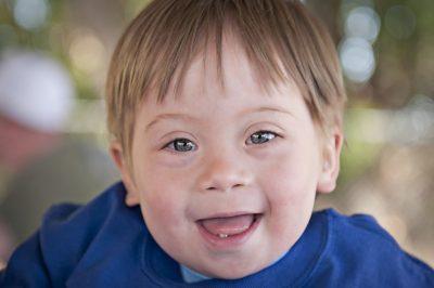 کودکان مبتلا به سندرم داون از لحاظ ظاهری، چهره مشخصی دارند. اگر چه همه کودکان مبتلا به سندرم داون دارای ویژگیهای یکسان نیستند